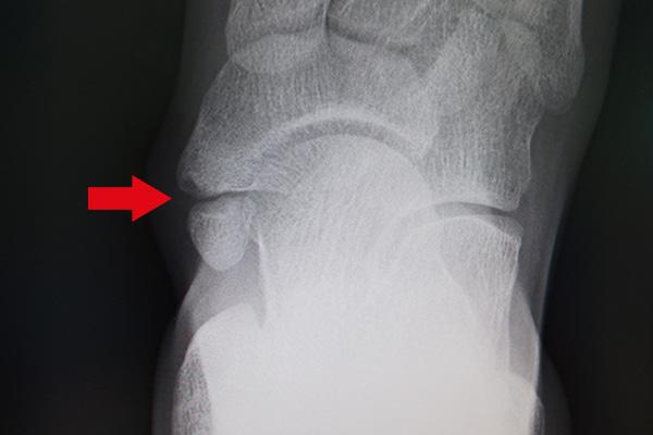 有痛性外脛骨の事例
